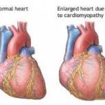 دکتر علی صالحی – متخصص قلب و عروق