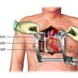 دکتر سیدعباس سیاهی – متخصص قلب و عروق