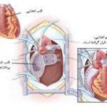 دکتر سینا مرادمند-تخصص کاردیولوگ قلب