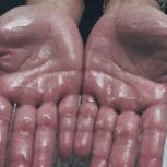 بوتاکس زیر بغل، درمان تعریق زیاد پا و کف دست